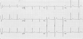 qrs duration normal range 1000 ideas about qrs complex on cardiac nursing phlebotomy definition and