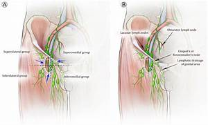 Lymphatic Anatomy