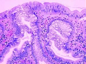 Barrett U2019s Oesophagus  From Metaplasia To Dysplasia And