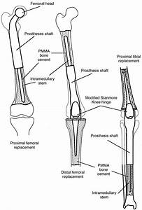 Diagrams To Show Proximal Femoral  Distal Femoral And
