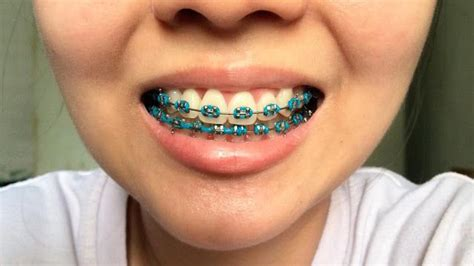 What Color Should I Get by What Color Braces Should I Get What Color Braces Should