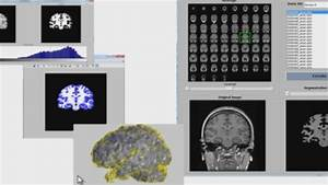 Medical Imaging Analysis And Visualization - Video