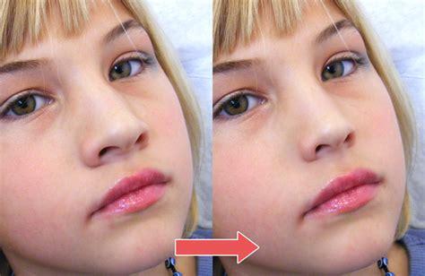 鼻 が 高く なる 方法