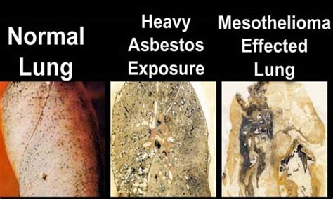 effects of asbestos when is asbestos dangerous for health piteda