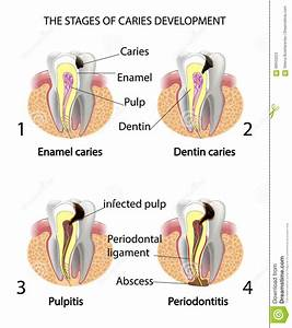 The Stages Of Caries Development Stock Vector