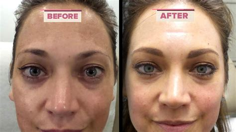 How to Get Rid of Melasma According to Ginger Zee's