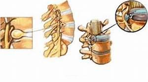 Гипертония при грыжа в шейного отделе