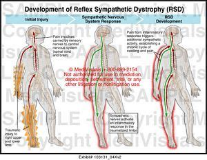 Reflex Sympathetic Dystrophy (rsd) Medical Illustration