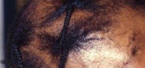 Treating Traction Alopecia in Kids - MDhairmixtress.com