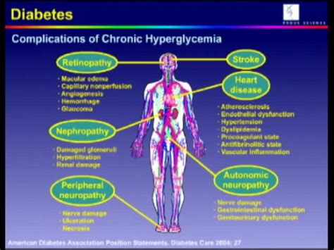 healthy living discusses diabetic neuropathy