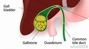 Best Gallbladder Surgeon  U0026 Gallstone Surgery Cost In