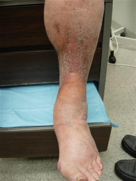 painful tightening   skin   legs  clinical