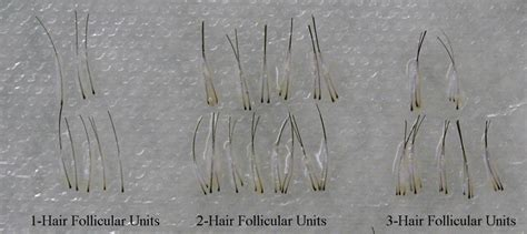 plucked hair follicle www pixshark images
