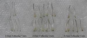 Plucked Hair Follicle | www.pixshark.com - Images ...