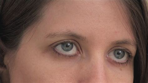 How To Get Rid Of Calcium Deposits Under Eyes