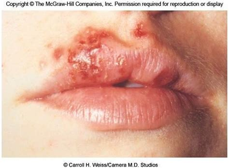 Herpes Virus Type 1, Oral Herpes Treatment, Therapeutic
