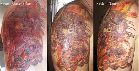 picosure laser bildergeschichte tattoo bewertungde