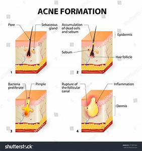 Formation Of Skin Acne Or Pimple. The Sebum In The Clogged ...