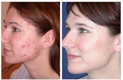 1. TOP Acne Treatment Reviews - (Videos, Cost, Ingredients