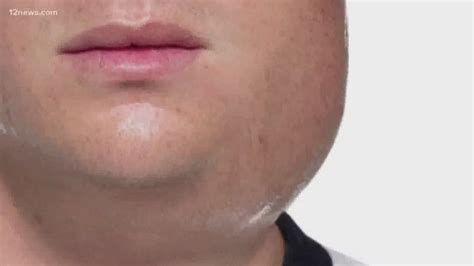 Maricopa County is experiencing a community-wide mumps ...
