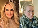 VOTE: Carrie Underwood's Gorgeous Post-Stitches Face - Can ...