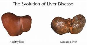 Wellness Lab Health Info  Early Symptoms Of Liver Damage