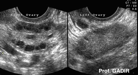 This video shows club foot fetal anomaly scan. healthy: Juli 1994