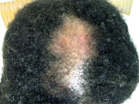 hair loss dermatologist central centrifugal cicatricial alopecia ccca hair loss in black women
