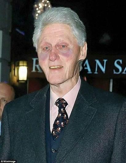 Clinton Bill Trump Vote Angry Looks Reagan