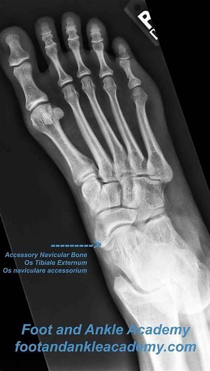 Os Naviculare Navicular Accessory Bone Externum Tibiale