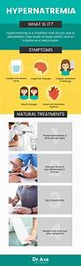 Hypernatremia  Symptoms   4 Natural Treatments For