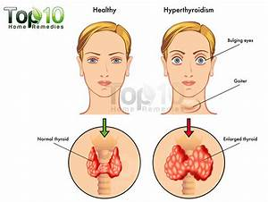 hyperthyroid - définition - What is