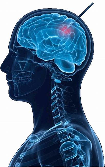 Brain Advanced Medical Therapy Development Clinical
