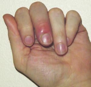 finger  hand infections musculoskeletal medicine