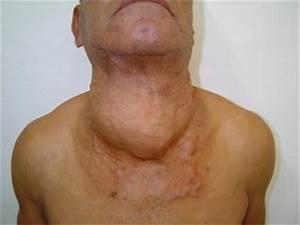 Оперативное лечение аденомы щитовидной железы