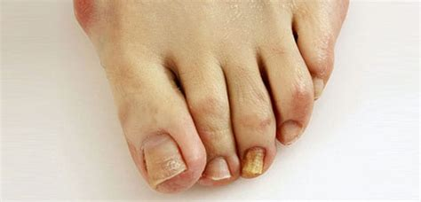 nail problems   foot  ankle center