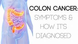 Colon Cancer  Symptoms And How It U0026 39 S Diagnosed