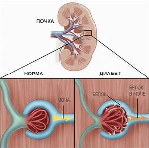 Диабет 1 типа новости по лечению