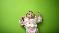 Is Microcephaly In Children Caused By The Zika Virus Or By ...