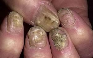 Средство от грибка ногтей нитрофунгин цена