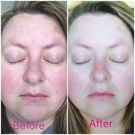 Rosacea Skin Care | Essential oils for rosacea, Rosacea