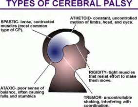 Motivated Parent - Successful Child: Cerebral Palsy (CP) Cerebral Palsy
