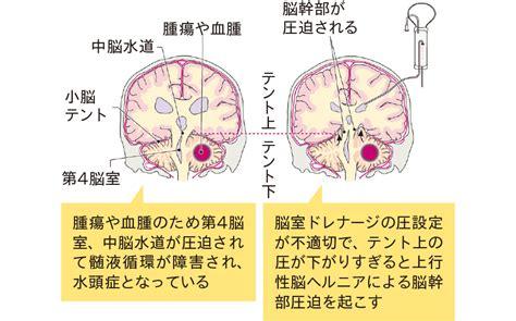 脳 ヘルニア と は