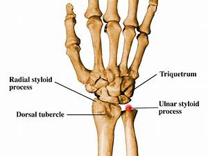 Ulnar Styloid Pictures to Pin on Pinterest - PinsDaddy