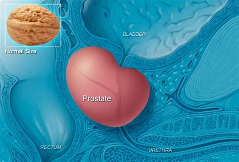 healthy life prostate cancer