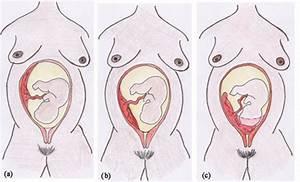 Antenatal Care Module  21  Late Pregnancy Bleeding  View