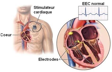 pacemaker chambre incidences des rayonnements électromagnétiques sur la santé