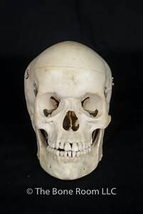 Pathological Human Skulls for Sale - The Bone Room