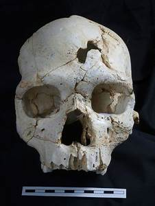 Ancient Skull Suggests An Early Murder
