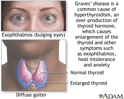 Interesting Faqs About Thyroid  Health Today. Understand Signs. Bottled Water Signs Of Stroke. Atherosclerosis Signs. February Signs. Vampire Diaries Signs Of Stroke. Used Hotel Signs Of Stroke. Inflammatory Myopathies Signs. Flower Crown Signs